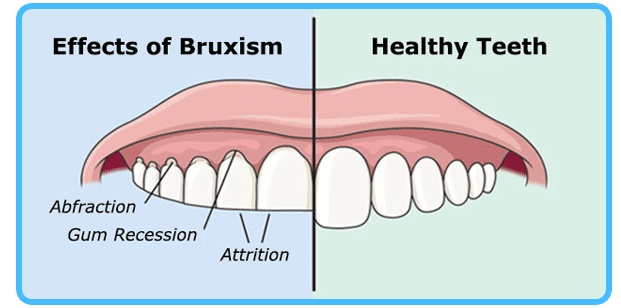bruxism.png