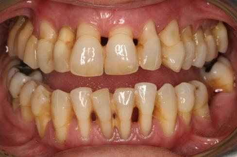 Doen 231 As Periodontais O Higienista Oral Blog