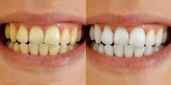 Resultado de imagem para dentes branco x amarelo