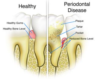 healthy_periodontitis