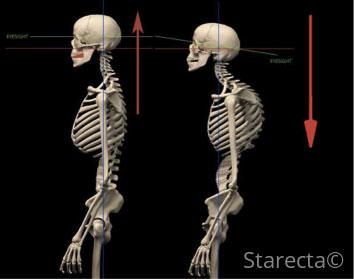 imbalanced-body