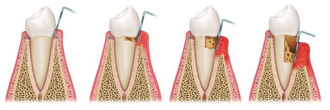 periodontitis-04