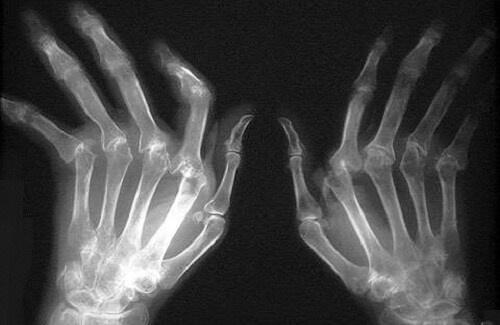 artritis-500x325-500x325
